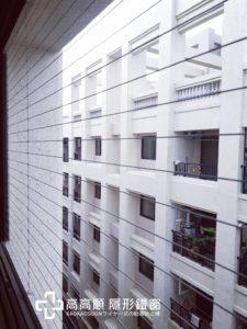 陽台-隱形鐵窗